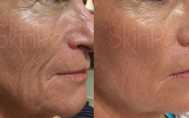 SkinPen Micro Needling Treatments Hornchurch Essex
